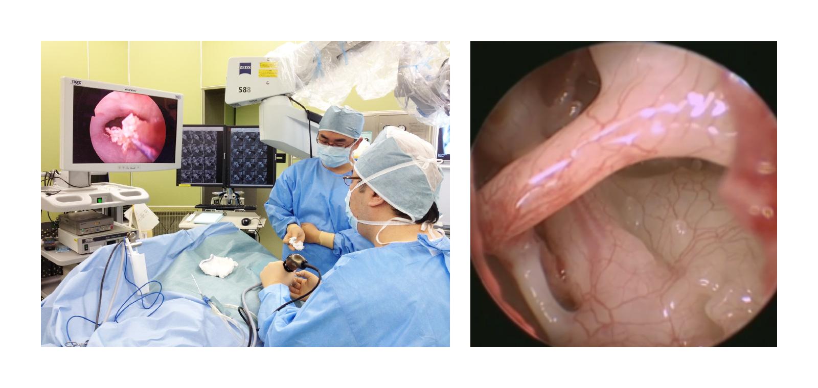内視鏡下耳科手術(TEES)