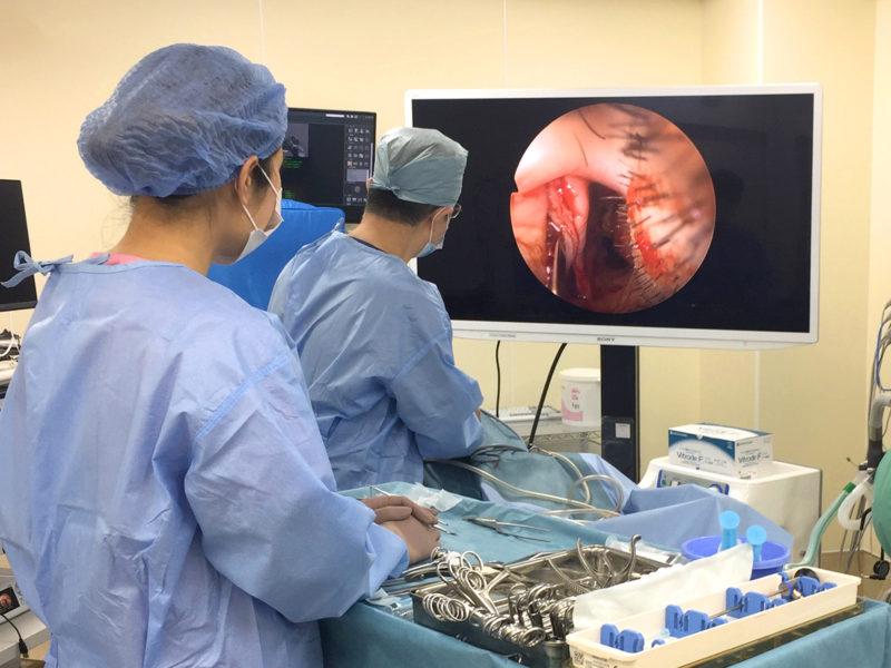 内視鏡下鼻副鼻腔手術 ESS